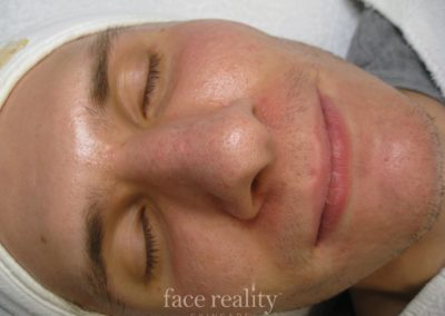 After FaceReality products